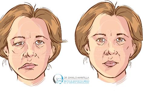 Parálisis facial   Diagnóstico y tratamiento