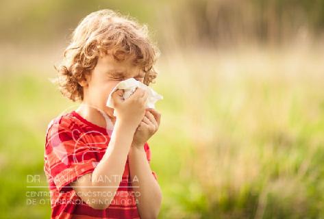 Rinitis alérgica | Avances en el tratamiento | Terapia sublingual