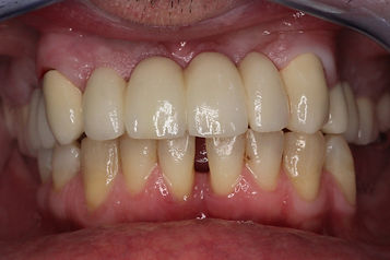 keramička krunica varaždin, keramički zubi cijena, stomatolog varaždin