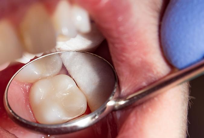 Bijele plombe, Dental Cupek Varaždin