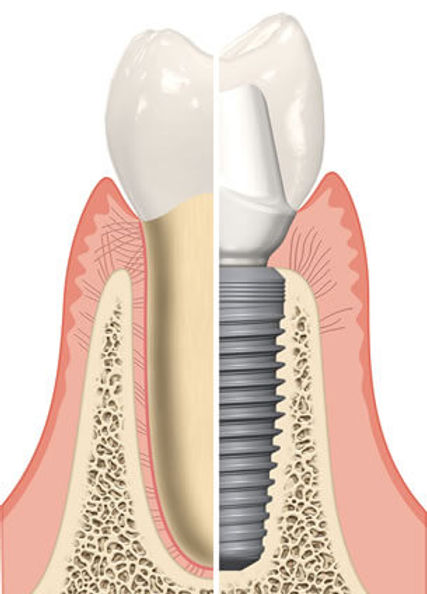 Zubni implantati, Dental Cupek Varaždin