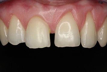 izbjeljivanje zuba, stomatolog varaždin