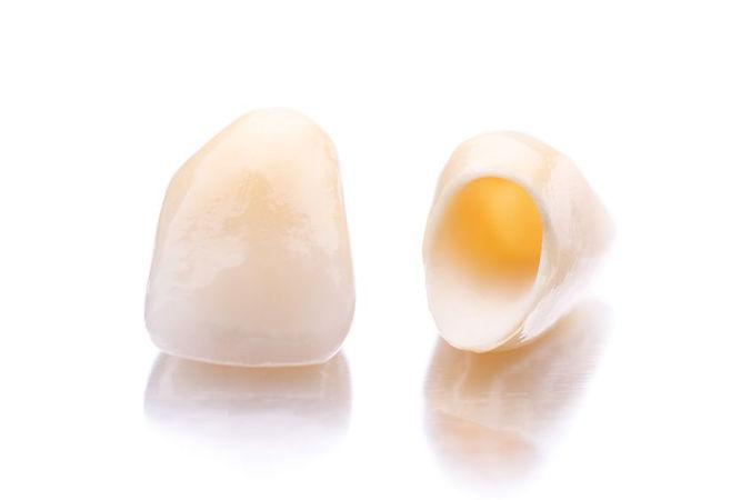 Zubne krunice i mostovi, Dental Cupek Varaždin
