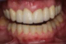 keramička krunica varaždin, keramički zubi cijena