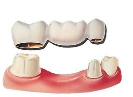 most za zube, most, stomatolog varaždin