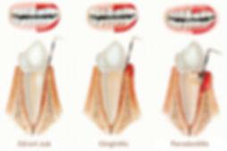 parodontolog varaždin, povlačenje zubnog mesa, upala zuba, upala zubnog mesa, gingivitis, paradentoza, parodontoza