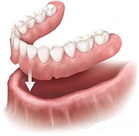 zubne proteze, potpune zubne proteze, zubne proteze cijena, zubne proteze varaždin