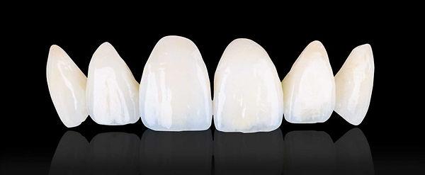 Bezmetalna keramika, prekrasni zubi
