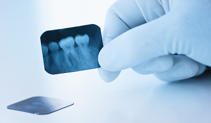 Oralna kirurgija, vađenje zuba, Dental Cupek Varaždin