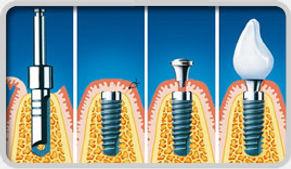 zubni implantati varaždin, implantati ankylos, implantati cijena