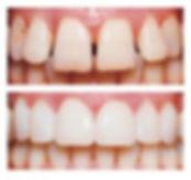 Ljuskice za zube, keramičke ljuskice za zube