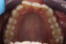 bijele plombe, bijele plombe za zube, zubne plombe, zubni ispun, stomatolog varaždin