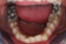 ispuna za zube, stomatolog varaždin