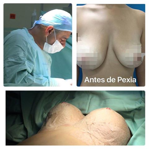 pexia mamaria, dr wilsson gutierrez