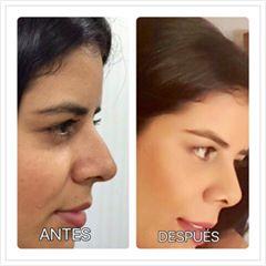 rinoplastia, cirugia nariz