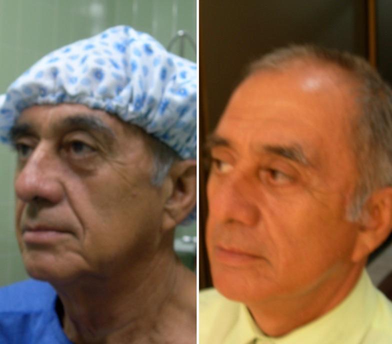ritidoplastia, dr wilsson gutierrez