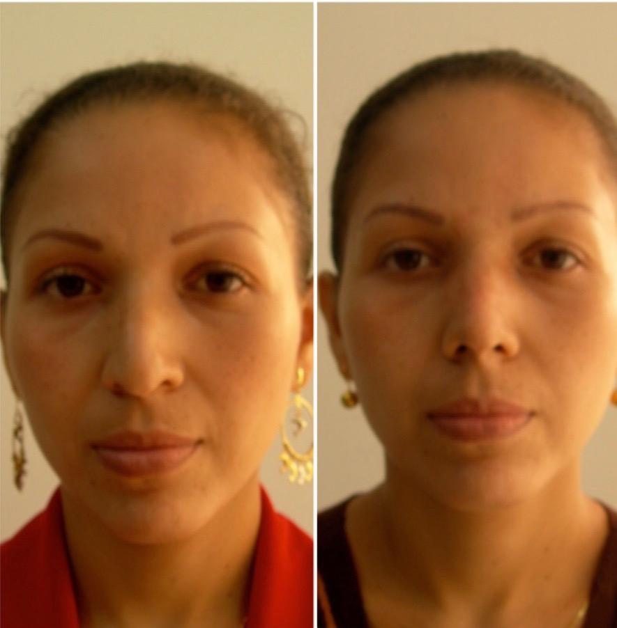 cirugia de nariz,drwilsson guiterrez