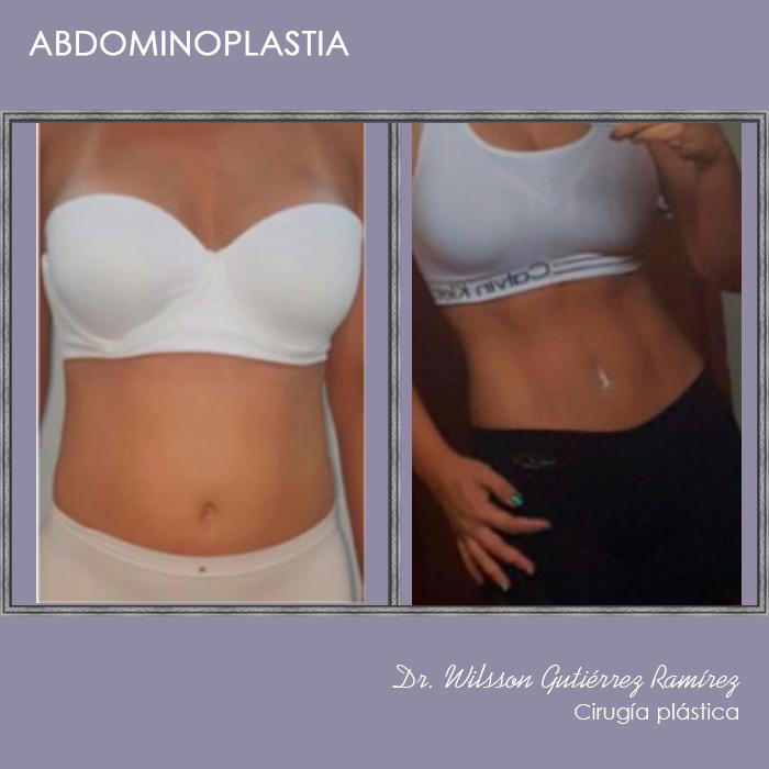 abdominoplastia,dr wilsson guiterrez