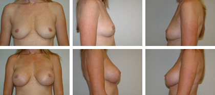 Axillary subfascial, 370xx high profile implants