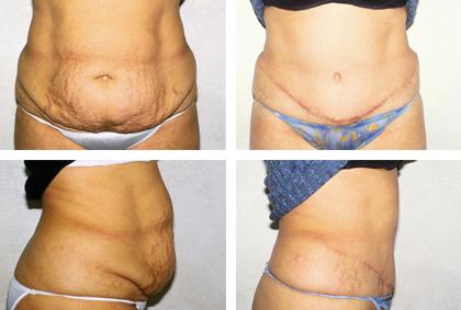 Extended Abdominoplasty