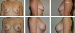 Axillary subfascial, 600cc implants
