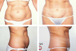 Abdominoplasty with bellybutton float
