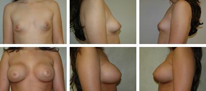 Transumbilical, subpectoral 360cc implants