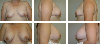Periaerolar subpectoral, 390cc implants
