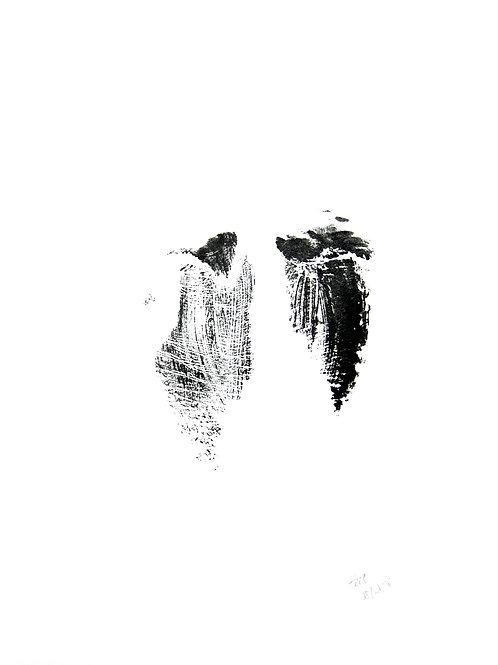 Feet - 08/14/18