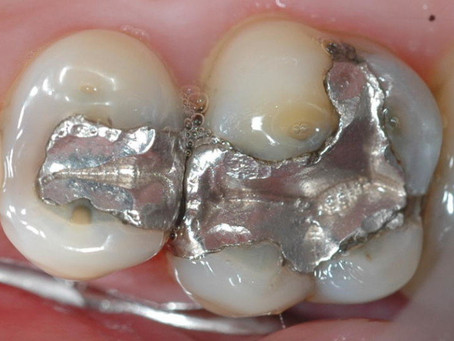 Amalgam Fillings – Keep or Replace?