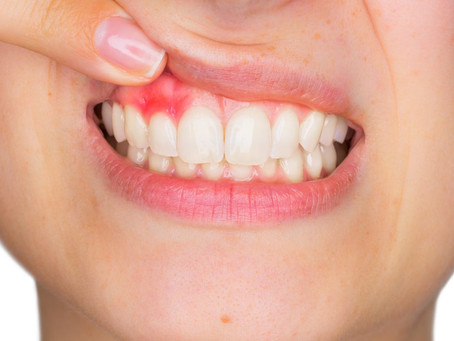 Think your gums are a lost cause?