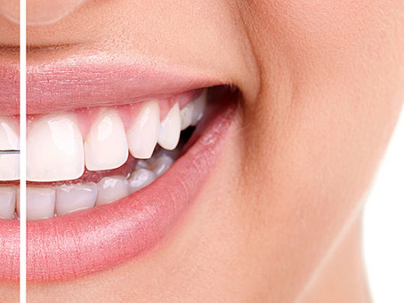 Getting straighter teeth is not as painful or expensive as you think!