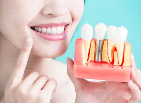 Can My Child Have Dental Implants??