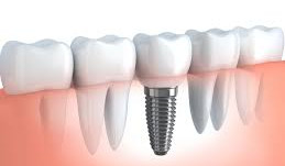 Dental implant treatment at Belmore Dental Implant Clinic: an infographic