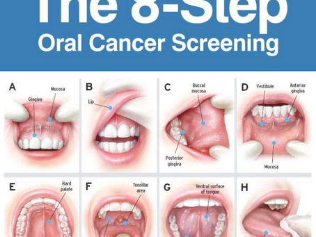What is Mouth Cancer?