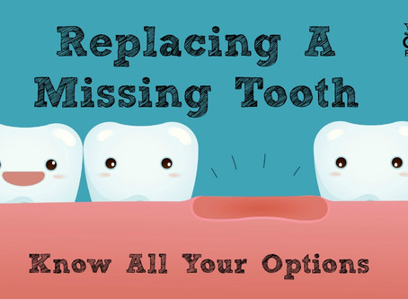 Got a question about replacing a missing tooth? Here are some answers