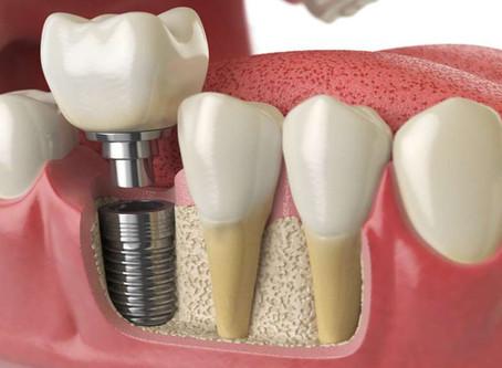 Dental Implants in Northern Ireland and Bone Resorption