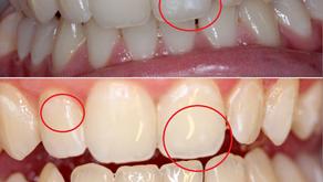 New Treatment - White Spot Removal