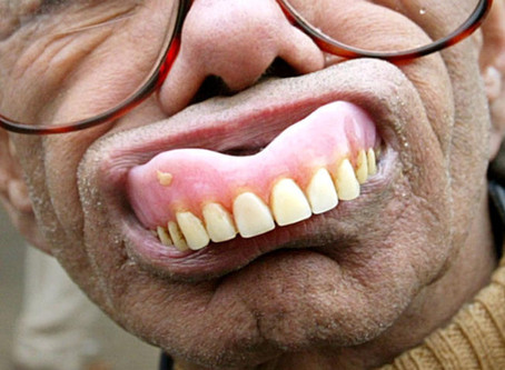 New Dentures Getting You Down In The Mouth?