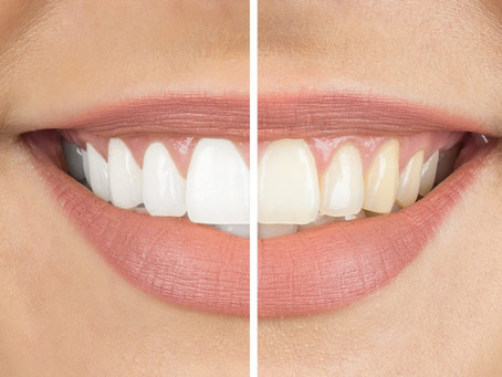 Got a question about teeth whitening? Here are some answers