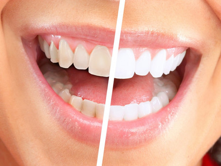 Teeth Whitening Northern Ireland – The Safest Cosmetic Dentistry Procedure Available