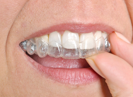 Clear Orthodontic Aligners – Are They Right For You?
