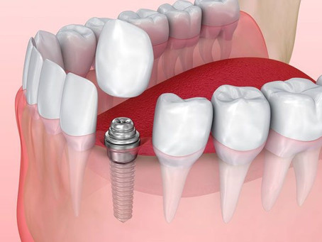 Dental Implants in Northern Ireland – 4 Falsehoods You Should Know!!
