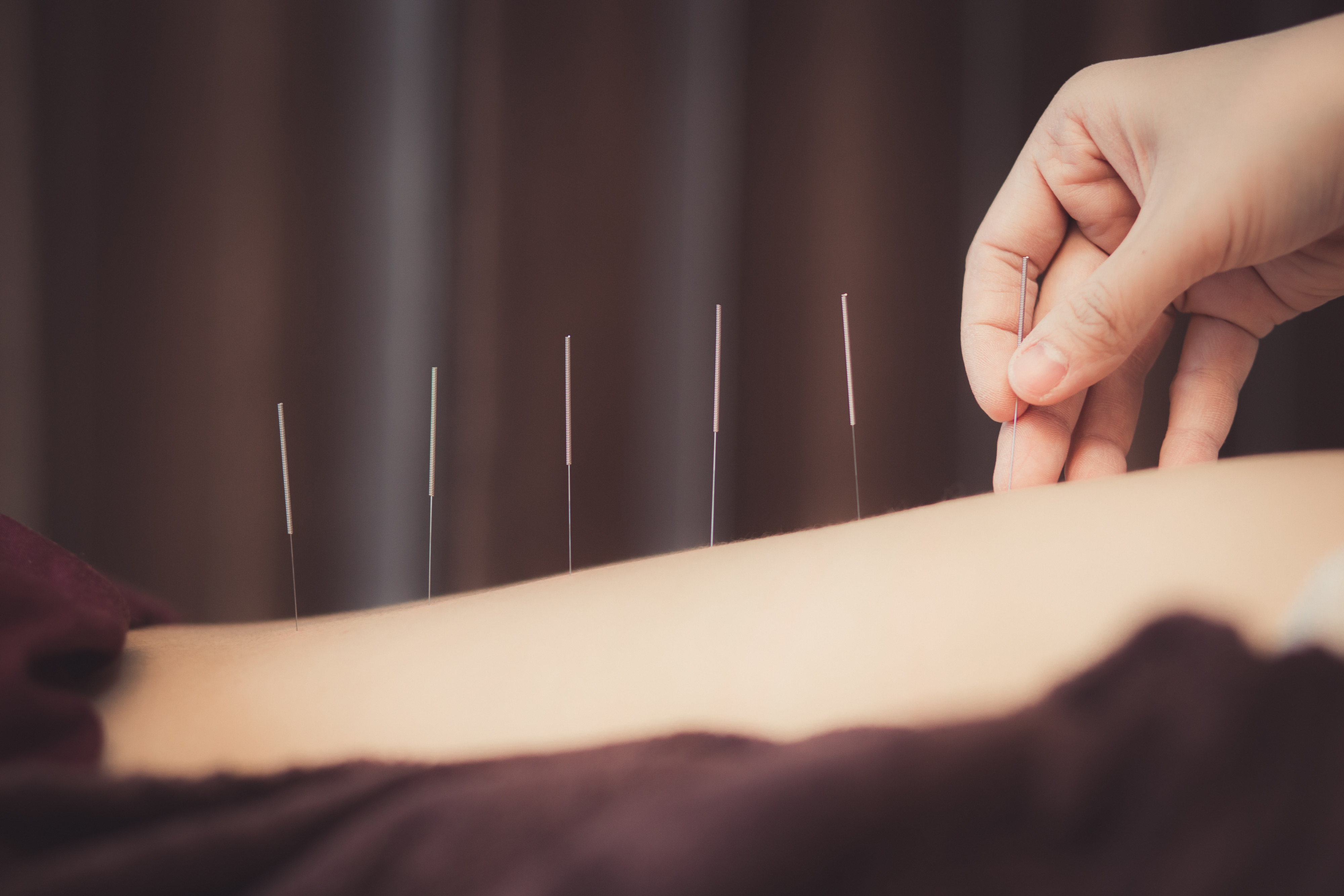 Acupuncture & Medical Qigong