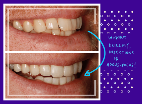 How Long Does Cosmetic Dentistry Really Last❓