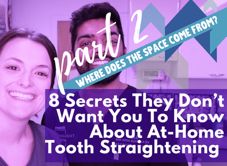 8 Secrets They Don't Want You To Know About At-Home Tooth Straightening (pt.2)