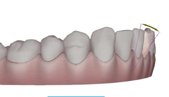 Bournemouth Straight Teeth, Teeth Straightening, Tooth Straightening, Invisalign in Bournemouth, Invisible Braces, Clear Braces