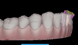 Bournemouth Straight Teeth, Teeth Straightening, Tooth Straightening, Invisalign in Bournemouth, Invisible Braces, Clear Braces