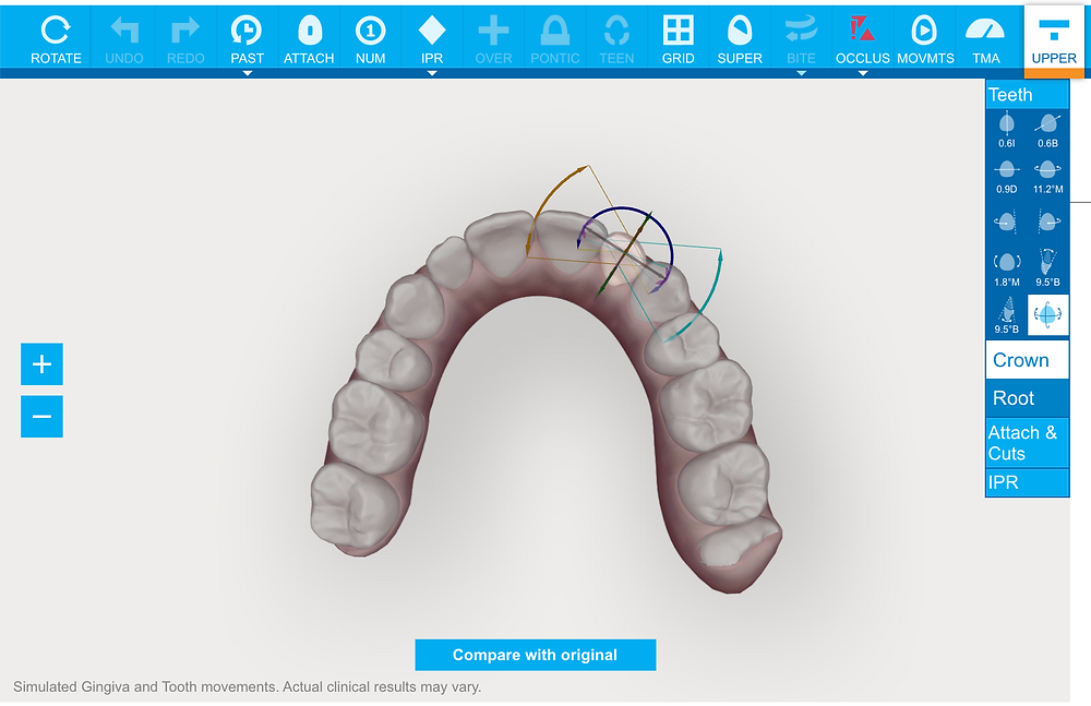 Invisalign Teeth Straightening 3D planning