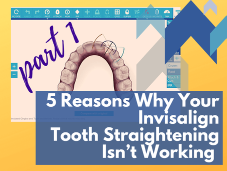 5 Reasons Why Your Invisalign Tooth Straightening Isn't Working (Pt.1)